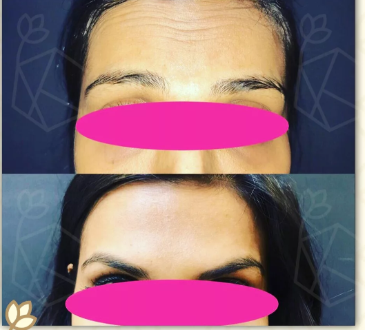 Brow Lift Before & After Photo -Dr. Karishma Kagodu