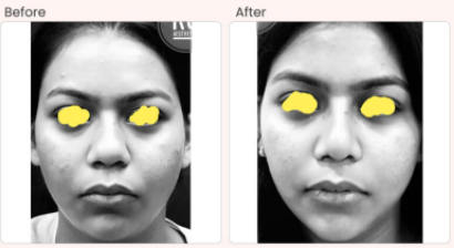 Buccal Fat Removal Before & After Photo - Dr. Rajat Gupta