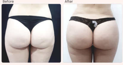 Buttock Enhancement Before & After Photo - Dr. Rajat Gupta