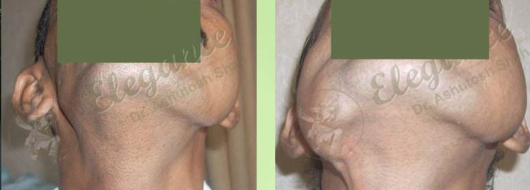 Chin Augmentation Before & After Photo - Dr. Ashutosh Shah