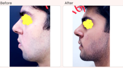 Chin Augmentation Before & After Photo - Dr. Rajat Gupta