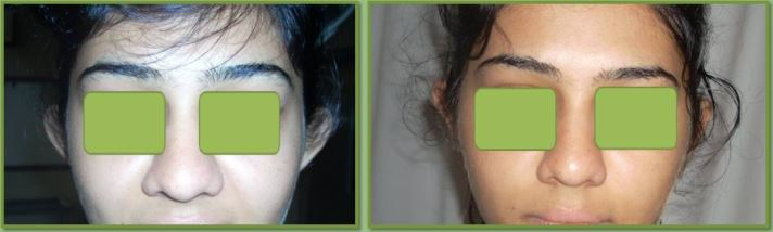 Ear-Surgery Before & After Photo - Dr. Ashutosh Shah