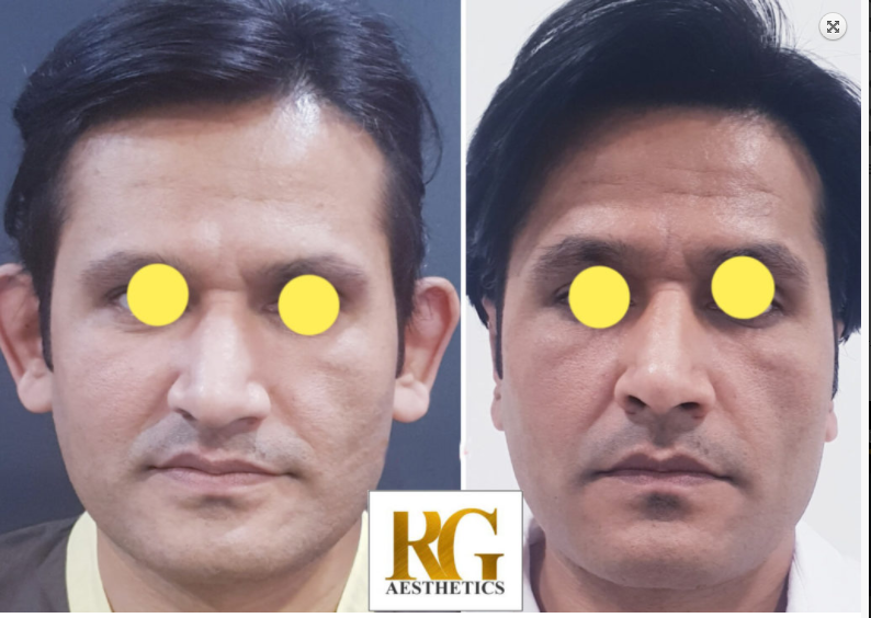 Ear-Surgery Before & After Photo - Dr. Rajat Gupta