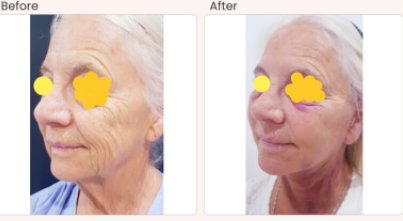 Facelift Before & After Photo - Dr. Rajat Gupta