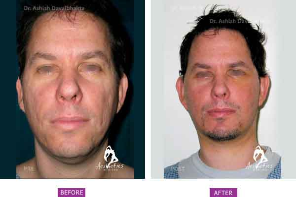 Facelift Before & After Photo - Dr. Ashish Davalbhakta