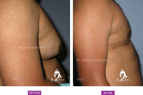 Gynecomastia Before & After Photo - Dr. Ashish Davalbhakta