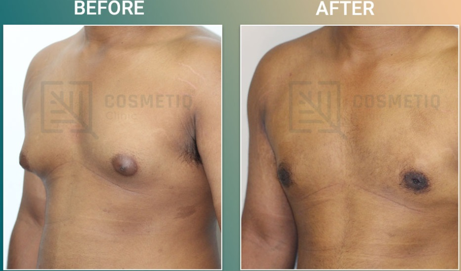 Gynecomastia Before & After Photo - Dr. Bibilash Babu