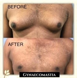 Gynecomastia Before & After Photo -Gynecomastia Before & After Photo - Dr. Ashish Davalbhakta