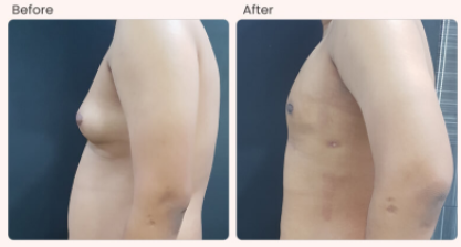 Gynecomastia Before & After Photo - Dr. Rajat Gupta