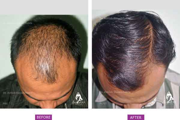 Hair Transplant Before & After Photo - Dr. Ashish Davalbhakta