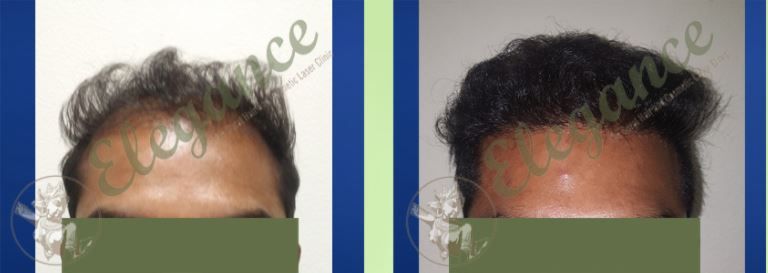 Hair Transplant Before & After Photo - Dr. Ashutosh Shah