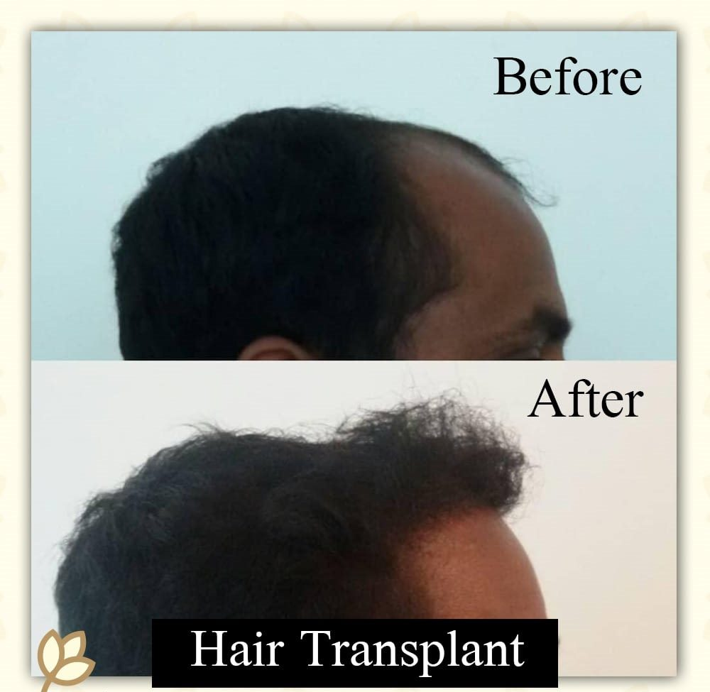 Hair Transplant Before & After Photo - Dr. Karishma Kagodu