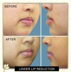 Lip Augmentation Before & After Photo -Dr. Karishma Kagodu