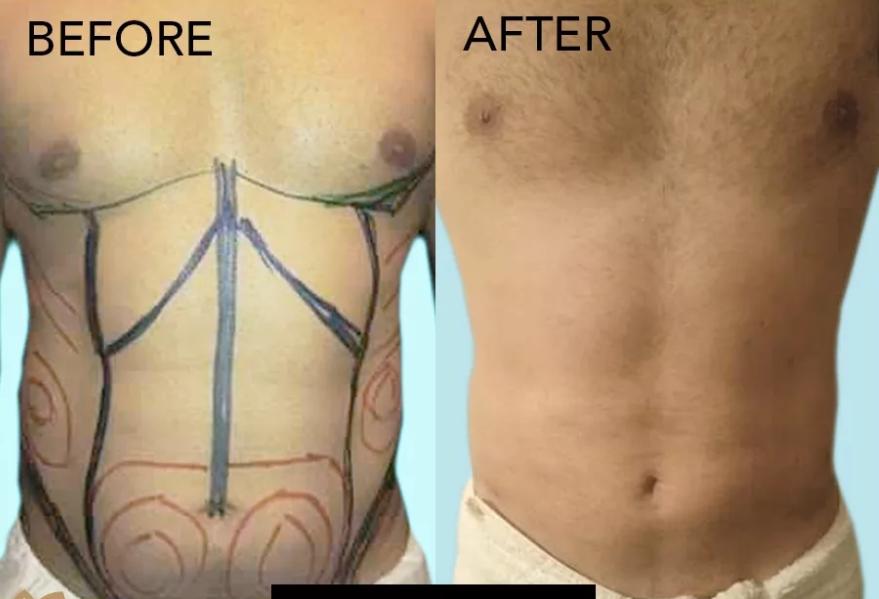 Liposuction Before & After Photo - Dr. Karishma Kagodu