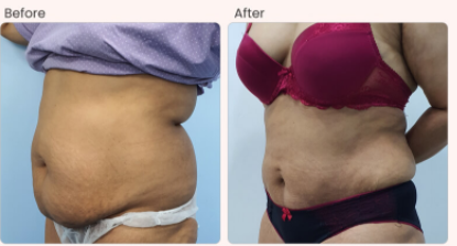 Liposuction Before & After Photo - Dr. Rajat Gupta