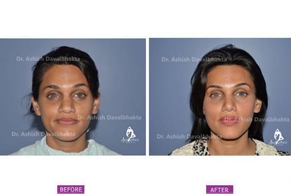 Rhinoplasty Before & After Photo - Dr. Ashish Davalbhakta