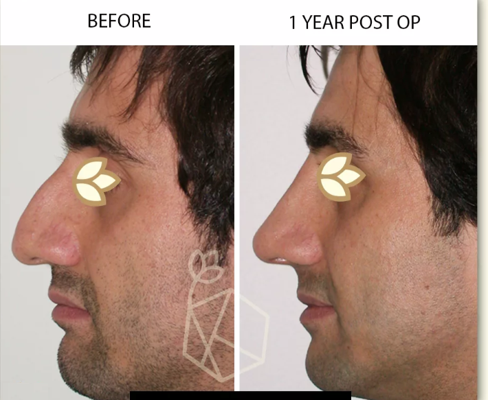 Rhinoplasty Before & After Photo - Dr. Karishma Kagodu