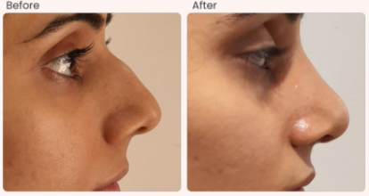 Rhinoplasty Before & After Photo - Dr. Rajat Gupta