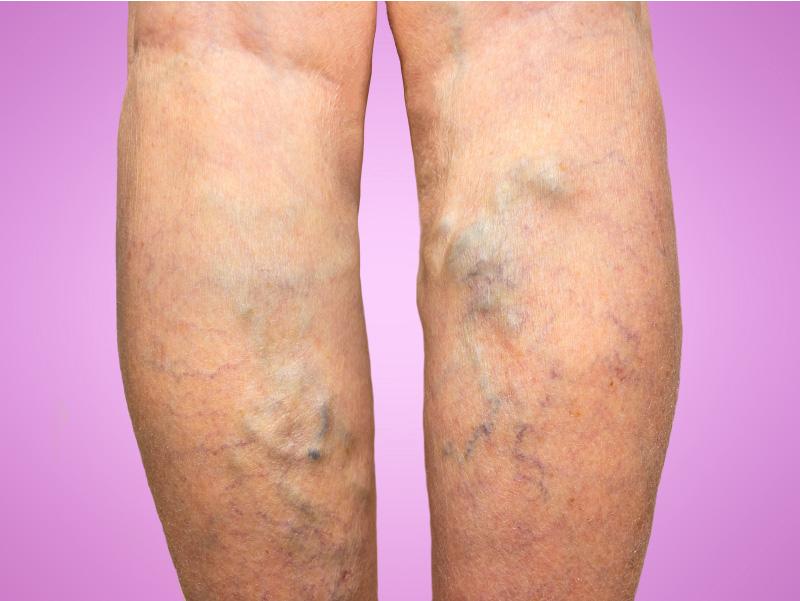 Varicose-Vein-Treatment-1